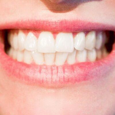 Černání zubů
